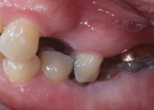 Occlusal Disease - Uneven Bite from Tooth Loss